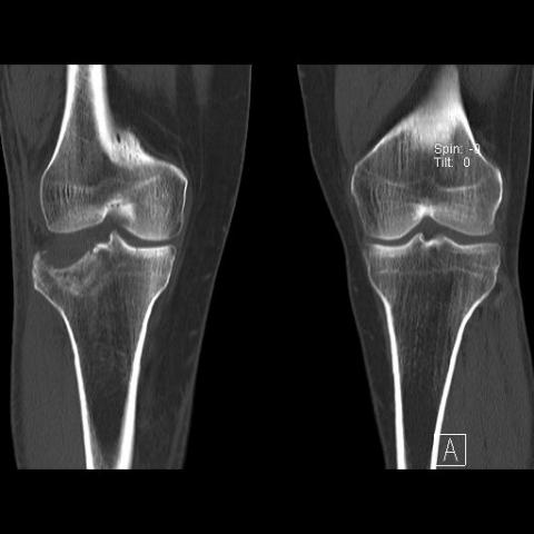 CT kolene