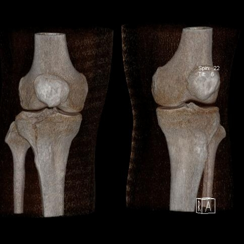 CT kolene VRT