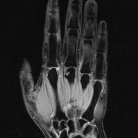 MR ruky