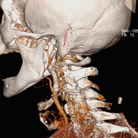 CTA karotidy VRT - stent