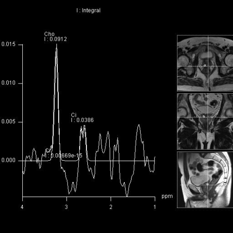 MR prostaty - spektroskopie