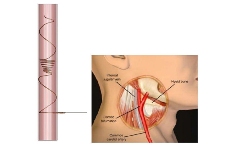 Homolka Miktrofiltr - fibrilace srdečních síní
