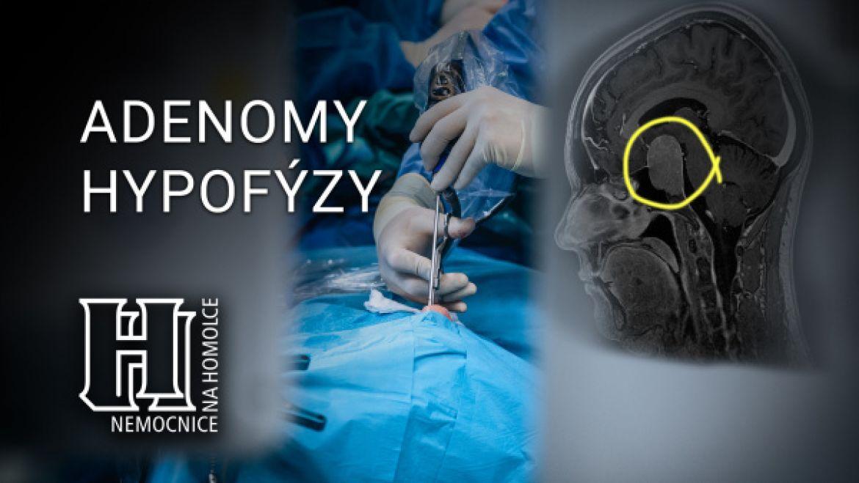Adenomy hypofýzy amožnosti léčby - video