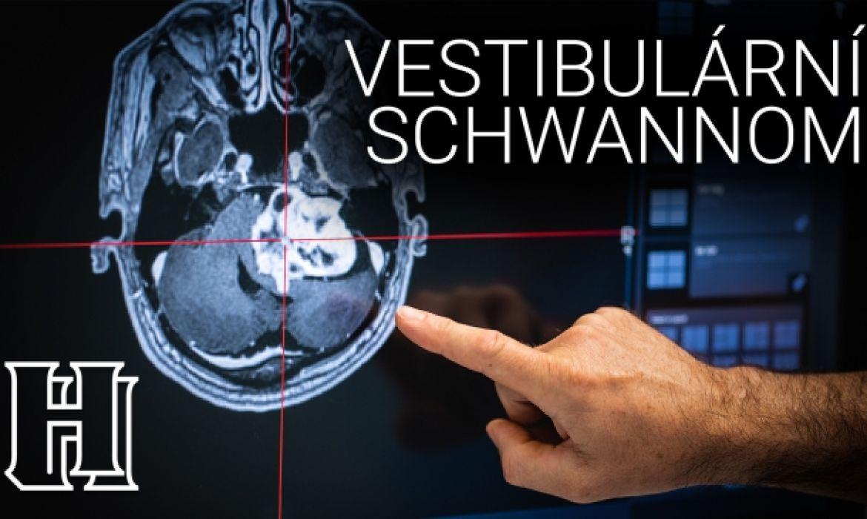 Vestibulární schwannom - video