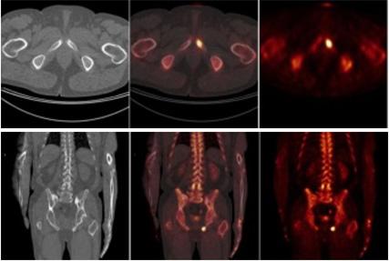PET/CT skeletu sNaF